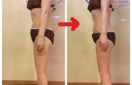 軟部組織リリース 筋膜リリース 事例 姫路 フロッカ エステサロン