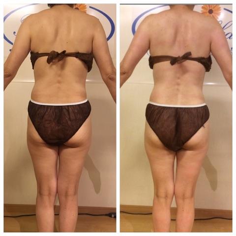 筋膜リリース5回の結果