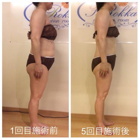 筋膜リリースの効果