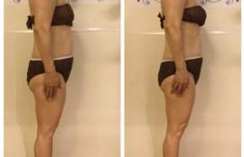 筋膜リリース