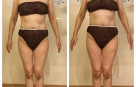 軟部組織リリース筋膜 筋膜リリース 事例 姫路 フロッカ エステサロン