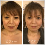 お顔の筋膜リリース