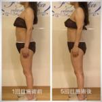 筋膜リリース 事例 姫路 フロッカ エステサロン