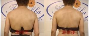 筋膜リリース 軟部組織リリース 痛くない筋膜リリース 姫路 フロッカ